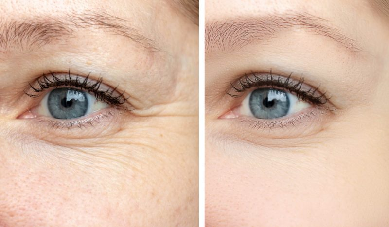 5 Ways to Defeat Wrinkles, Crows Feet and Other Signs of Ageing