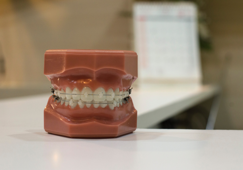 Take your teeth on vacation: medical tourism