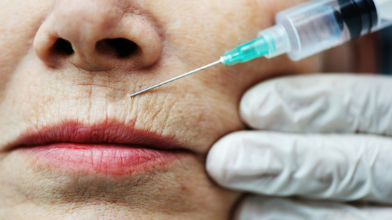 Blurring the lines of age and youth: injectable skin solutions